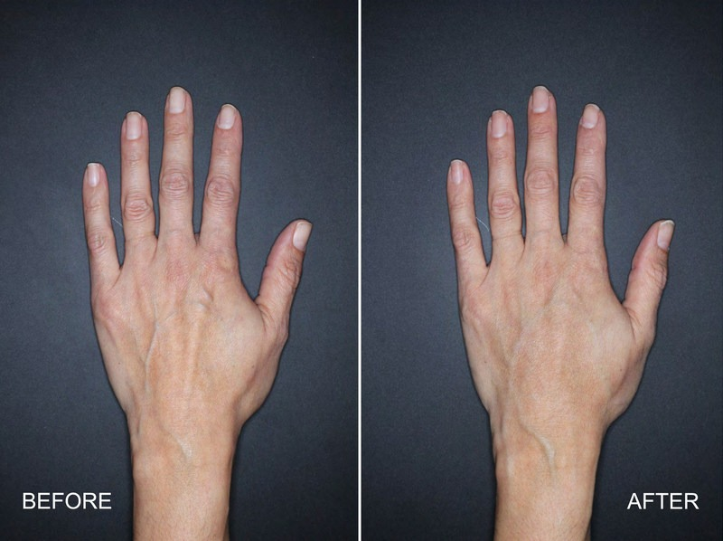 Actual Before & After Results of Restylane Lyft for Hand Rejuvenation