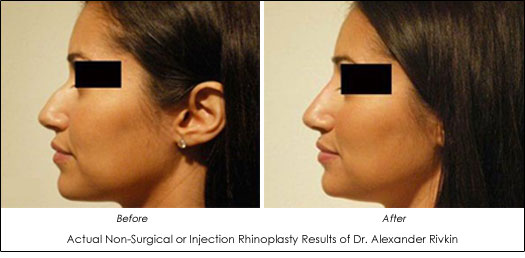 Dr Alexander Rivkin Non Surgical Nose Job Before and After