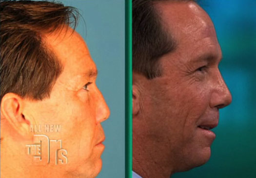 plastic surgery addiction essay