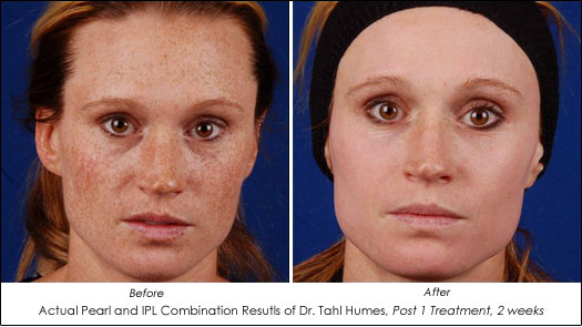Pearl Laser And Ipl Improve Skin Color And Quality Ahb