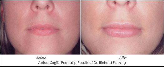 permalip before after results