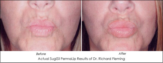 Fuller Lips Now Available With PermaLip Implant - AHB