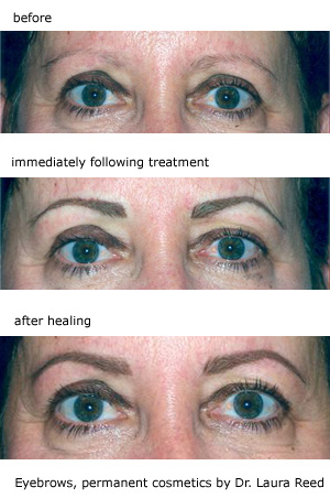 Permanent Makeup Before and After Photo