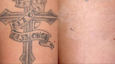 Before and After Photos of Tattoo Removal with PicoSure