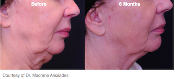 Before and after photo of Profound Neck Lift