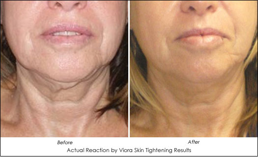 turkey neck prevention reaction viora
