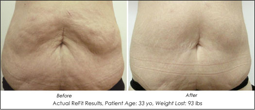 ReFit skin tightening before and after