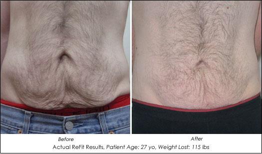 tighten sagging skin after weight loss