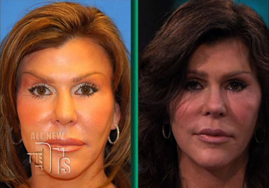 too much plastic surgery before and after