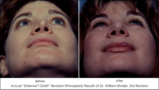 Revision Rhinoplasty Results T Graft Dr. William Binder