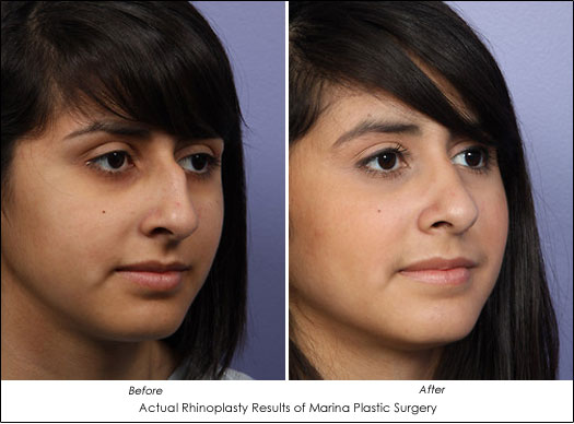 nose reconstruction from traditional rhinoplasty to non surgical