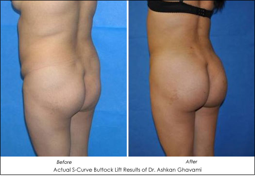 Actual Butt Lift Before and After
