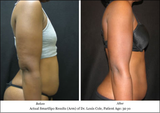 smartlipo arm lift before after photos