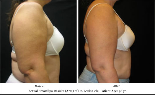 smartlipo arm lift