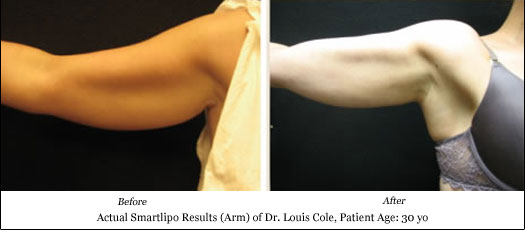 smartlipo arm lift results