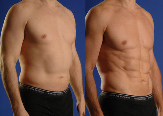 smartlipo hi definition before and after photos