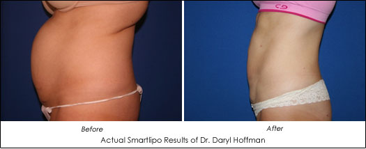 san jose smartlipo before after