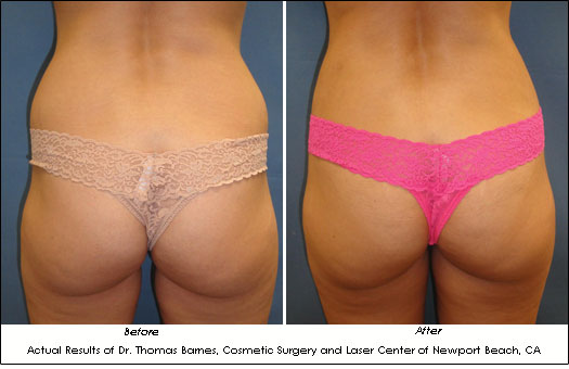 smartlipo orange county