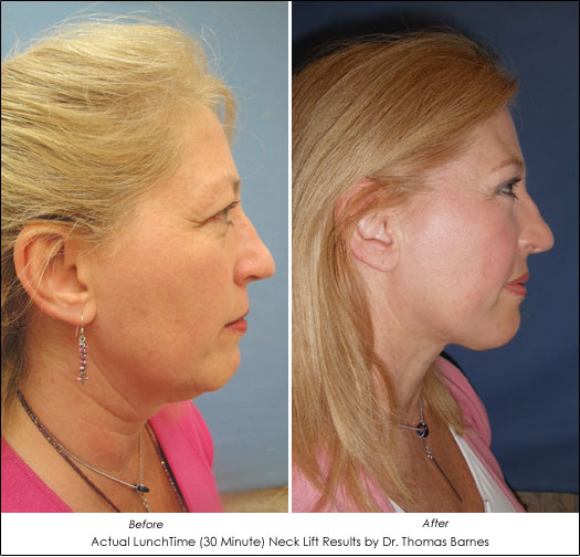 smartlipo turkey neck treatment