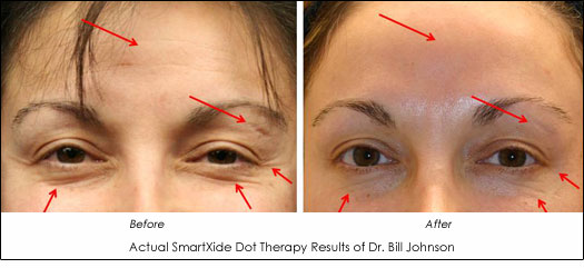 dr. johnson smartxide dot therapy before and after photo