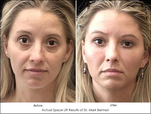 Space Lift The Fat Transfer 3-Dimensional Face Lift - Ahb-5101