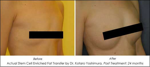 natural breast augmentation before and after