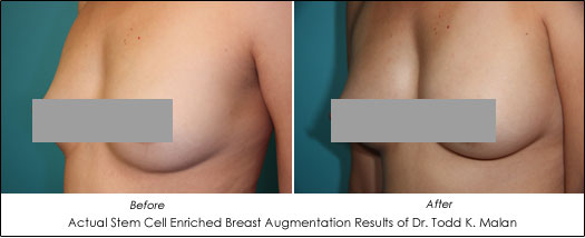Stem Cell Breast Augmentation Vs Natural Breast Augmentation Ahb