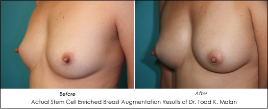 stem cell breast augmentation before and after photos