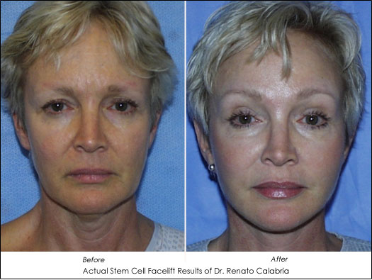 Stem Cell Facelift Dr. Calabria Results