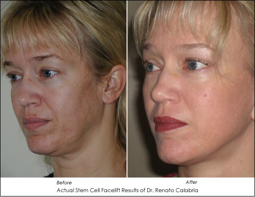 Stem Cell Face Lift Results Dr. Renato Calabria