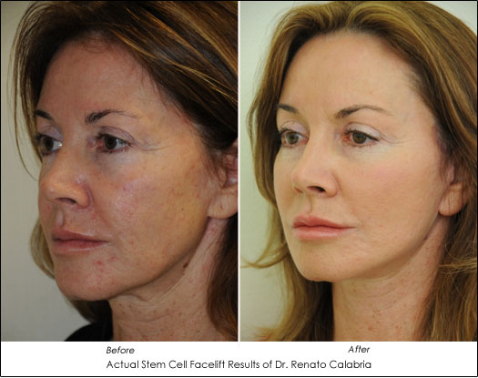 Stem Cell Facelift Before After Dr. Calabria