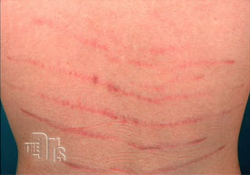 Treating Stretch Marks With Lasers Ahb