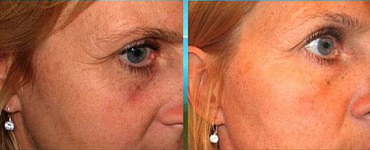 Delightful Tanda Light Therapies Bring Spa Treatments Home Ahb