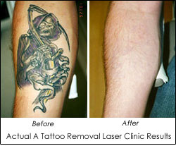 Results graficos pictures to pin on pinterest tattooskid for Tattoo removal clinic