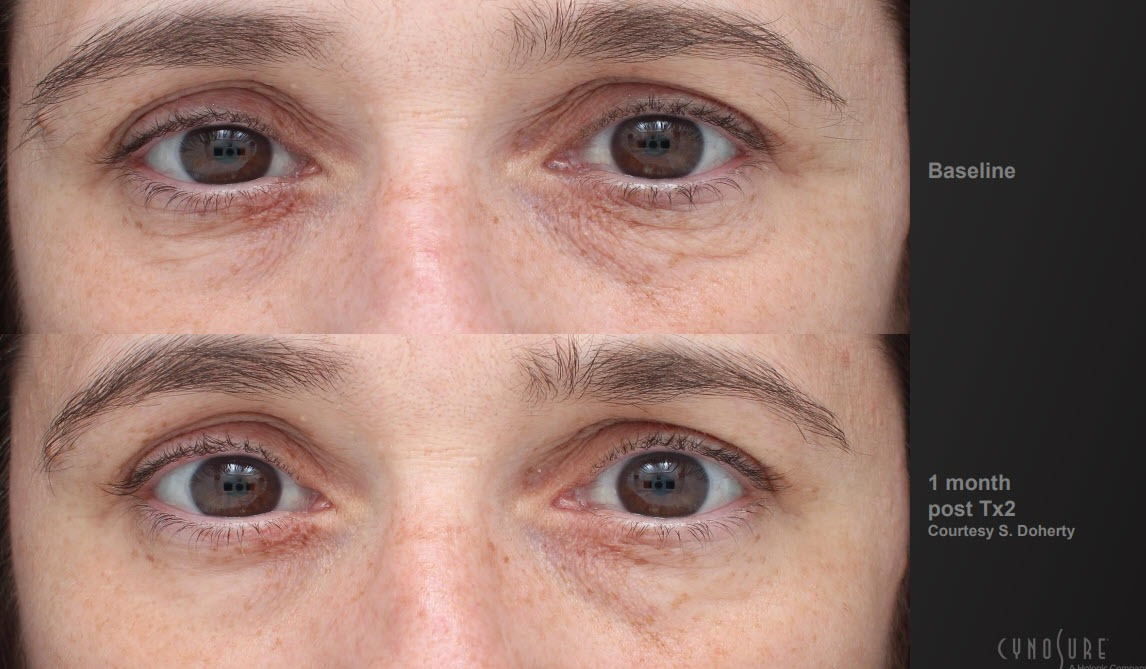 Tempsure Results around Eyes