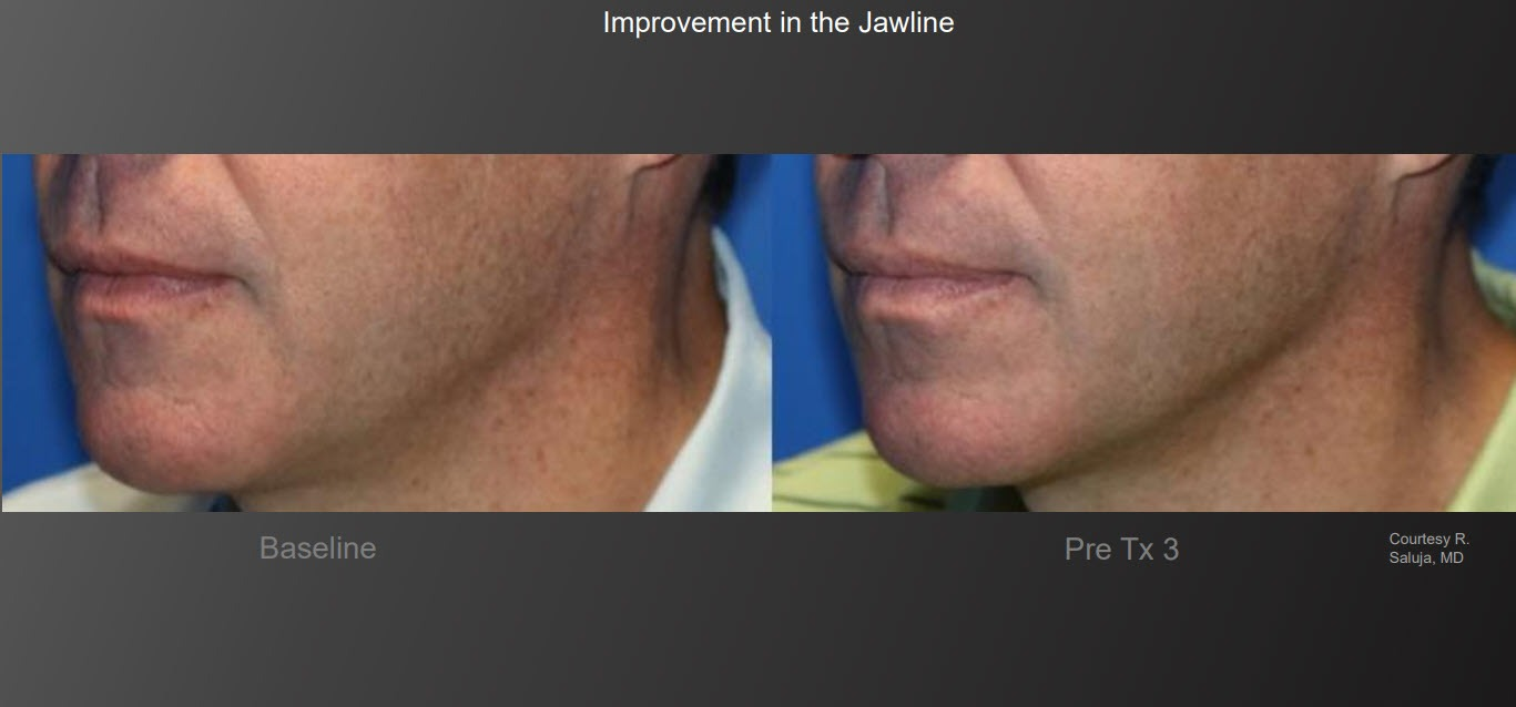 Before & After TempSure Jawline