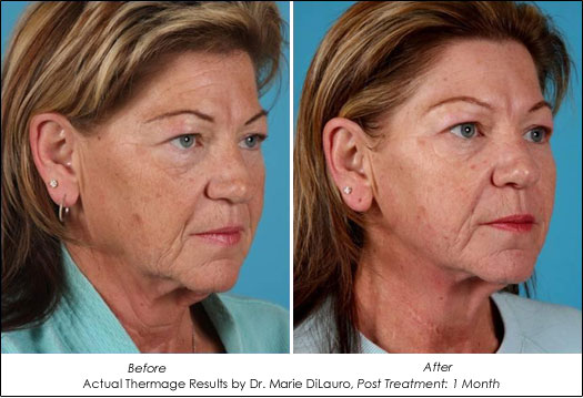 Thermage on Good Morning America: Skin Tightening Without