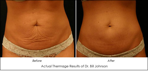 Tighten Skin With Radio Frequency 3 Ways Ahb