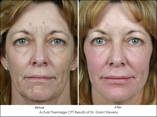 Turn Back The Clock With These 2 Skin Tightening Facelift