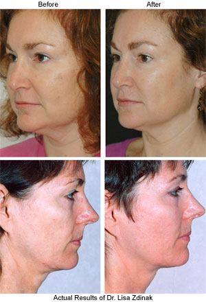Thermage CPT Makes Comfortable Non Surgical Facelift