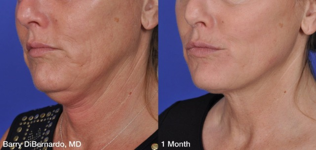ThermiTight Alternative to Neck Liposuction