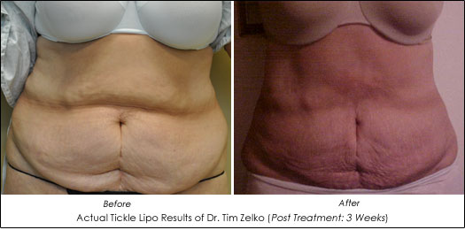 Tickle Lipo Before After Results
