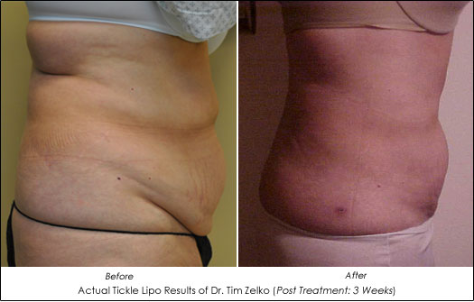 Tickle Lipo Before After Photos