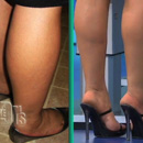 Plastic surgery for Calf-Ankles or