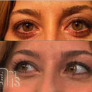 Dr. Alex Rivkin Performs a Non-Surgical Blepharoplasty on The Doctors