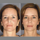 ActiveFX from Lumenis provides results, often in just one treatment session.