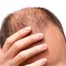 NeoGraft triples the speed of follicle extraction for hair transplant.