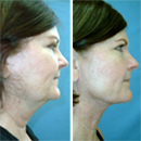 A Neck Lift Without the Scalpel - Lose 10 Years Without Going Under