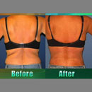 Using a dual pronged system and safety monitoring, BodyTite is RF energy's answer to liposuction.