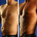 Patients are turning to Vaser Liposuction not just for their general lipo needs, but for Vaser Hi-def, a form of precision sculpting that can help uncover underlying muscular detail.